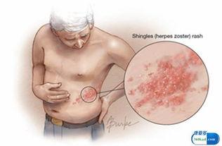 小康说药 盐酸伐昔洛韦片对疱疹有哪些作用