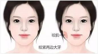 上海沃美医疗瘦脸针