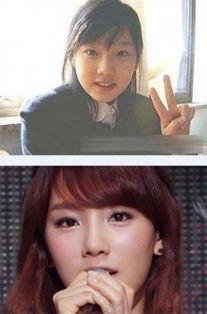林允儿金泰妍 韩星整容前后照片惊悚对比