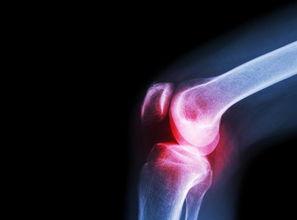 晚期髌骨软化症怎么治疗5方法控制晚期髌骨软化症