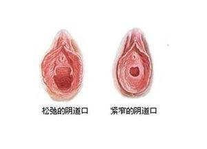女性如何呵护阴道