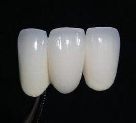 假牙清洁:如何保护好假牙