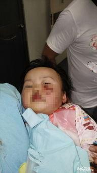斗牛犬咬伤2岁女童脸遭毁容狗主人遛狗不牵狗绳引发悲剧