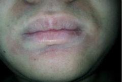 口周皮炎的症状 教你认识口周皮炎