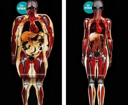 常见的健身损伤有什么
