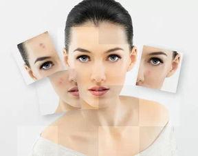 皮肤每28天就翻新一次 皮肤科专家告诉你如何抓好这28天