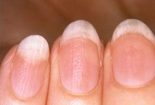 容易与灰指甲混淆的指甲疾病