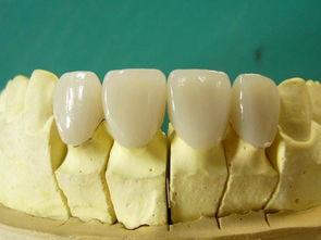 钴铬合金烤瓷牙有何优点