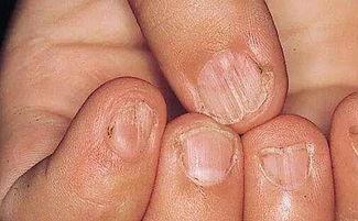 指甲上有小白斑意味着什么疾病?