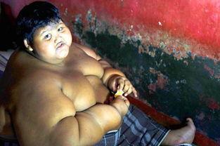 世界上最胖的男孩,体重380斤,通过手术成功甩掉190斤