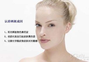 晒斑是怎样形成的 如何预防晒斑