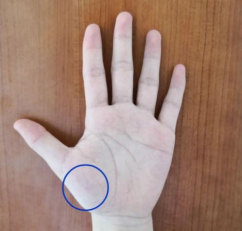 这些部位有青筋太危险了  女性手背青筋明显命苦