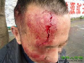 一位大爷在街头摔成重伤,120楼有医生更新后续内容慎入