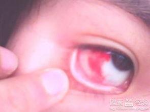 眼睛充血是什么原因,眼睛充血怎么治疗