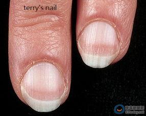 观察指甲纹路看身体疾病