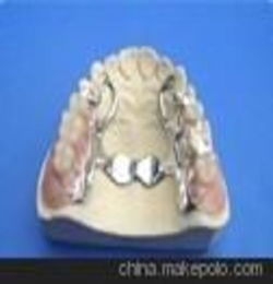 钛合金假牙焊接 牙托修补焊 北京义齿激光焊接加工厂