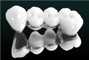 关于金属烤瓷牙与二氧化锆烤瓷牙的优缺点比较