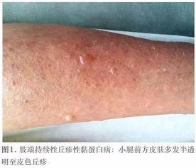 肢端持续性丘疹性黏蛋白病 少见疾病的皮肤镜表现