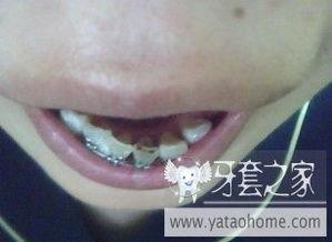 来看看我的牙齿吧,已经很久都没有变化了,伤心