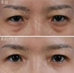多重睑及三角眼-眼周年轻化,拒绝衰老迹象从眼部开始