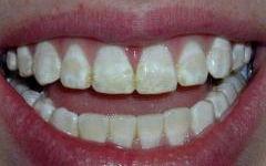 关于补牙的一些知识