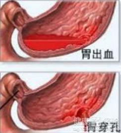 胃出血注意事项