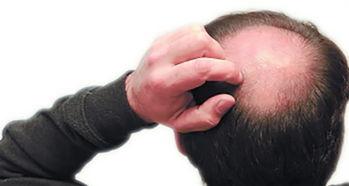 这个八字主人为什么头发秃顶,却眉毛(作梦,梦头发全脱落,又长出新头