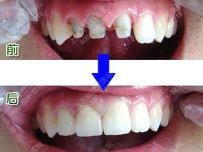 假牙怎么保护?如何更快适应假牙?