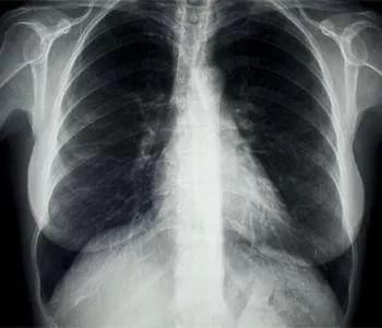 肺部位置(人体肺部的位置图)