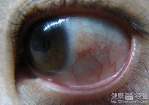 季节性角膜炎适合做哪种手术
