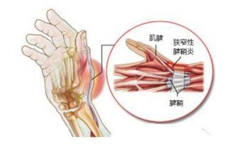 手腕部疼痛肿胀,上班族该如何缓解和预防键盘手