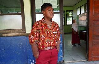 世界上最胖少年减肥成功10岁时体重达383斤图