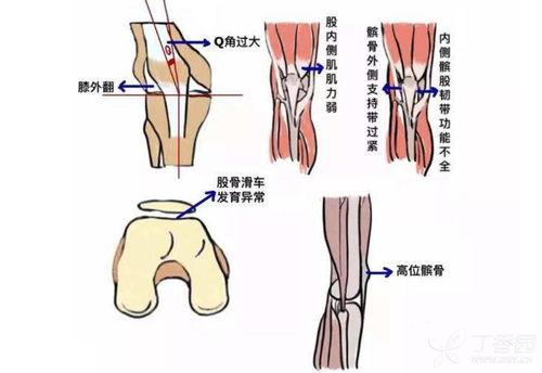 髌骨软化症的最佳治疗方法