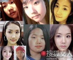 女星整容换脸 改变命运获得重生
