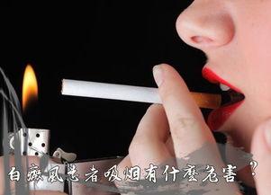 吸烟对白癜风患者的危害到底有多大
