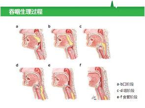 吞咽功能障碍康复训练治疗新技术