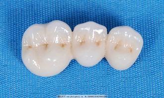 假牙变黑怎么办?教你怎么保护假牙