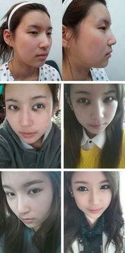Tiffany金泰妍不整不能看 少女时代未整容前照片不忍直视