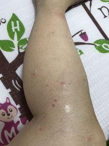 我这是小腿毛囊炎吗