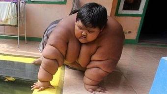 世界最胖的男孩体重380斤,减肥166斤后变成小帅哥美国健康网